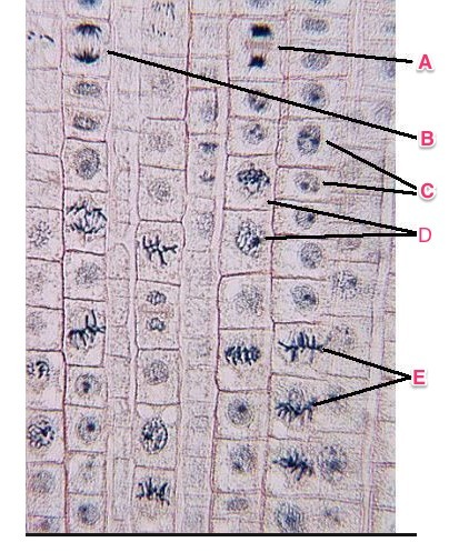 Arrange the stages of mitosis shown in the diagrams in sequential arrange the stages of mitosis shown in the diagrams in sequential order use the abcde labels on the drawings to indicate the order a a b c d e ccuart Gallery